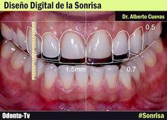 diseño-digital-sonrisa