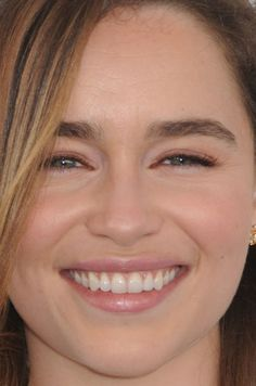 Close-up of Emilia Clarke at the 2016 Independent Spirit Awards. Celebrity Makeup Looks, Celebrity Beauty, Emilia Clarke Hot, Close Up Faces, Teeth Whitening Remedies, Perfect Teeth, Canadian Girls, Portrait Photography Poses, Spirit Awards