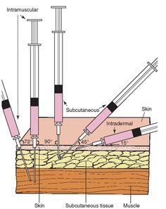 Comparison of the angles of insertion for intramuscular (IM), subcutaneous, and intradermal injections. An IM injection is given at a 72- to 90-degree angle. A subcutaneous injection is usually given at a 45-degree angle, but may be given at up to a 90-degree angle, if a short needle is used or if the person is heavy. The intradermal injection is given holding the syringe nearly parallel to the skin (10- to 15-degree angle).