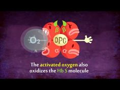 Understanding the science behind Sickle Cell in an animated video...