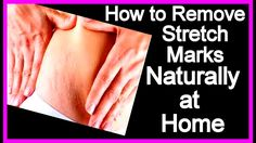 How to Remove Stretch Marks Naturally at Home | Get Rid of Stretch Marks...