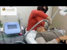 טיפול בטכנולוגיית Elos  מבית Syneron במכון אורמדיקס קוסמטיקה רפואית