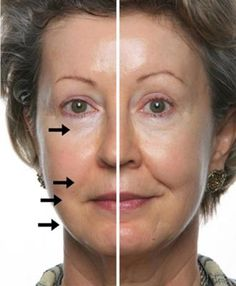 Results after just 1 treatment with the NuSkin Galvanic Spa: I use the NuSkin Galvanic Spa with their special ageloc gels (which reverses the signs of aging at the source) for deep cleansing, to minimize my pores,