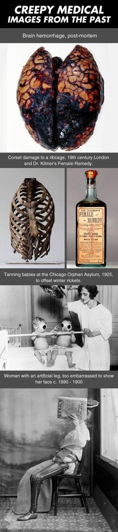 Creepy medical images from the past. | ScienceDump