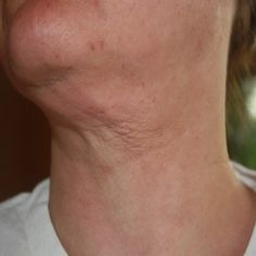 Effective Tips To Reduce The Appearance Of Neck Bands