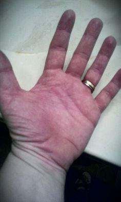 Image of thermoregulatory sweat test (TST) via Mayo Clinic ...