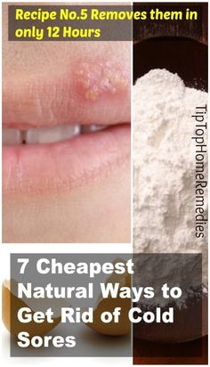 How to Get Rid of Cold Sores - 7 Cheapest Natural Ways (Recipe No.5 Removes them in only 12 Hours) #coldsores