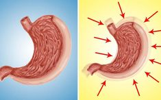 Как уменьшить объем желудка: Проверенные способы Health Care, Outdoor Decor, Food, Sport, Beauty, Health, Deporte, Beleza, Eten