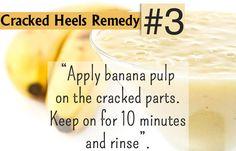 DIY Cracked Heels Remedies ~ Home Remedies For Cracked Heels - Banana & Avocado