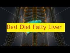 Best Diet Fatty Liver #DietFattyLiver