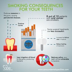 Smoking can harm your teeth and gums. Dental Hygiene, Dental Health, Oral Health, Dental Care, Top Dental, Dental Posters, Teeth Dentist, Oral Cancer, Health Fair