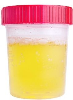 Why does Proteinuria Recur again Proteinuria is a common symptom for many patients with chronic kidney disease. When chronic kidney disease patients find out that they have proteinuria, they do not feel pain or itch, which will not lead to inconvenience, either. However, the most characteristic of proteinuria is that it is refractory. No matter people take western medicine or Chinese medicine http://treat-kidney.blogspot.com/2014/09/why-does-proteinuria-recur-again.html