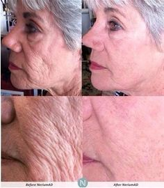 Real results!  Real science!  Get real.  Get NeriumAD! mrupp.nerium.com smoothmovegoodlookin.com