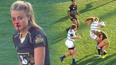 Quand la chirurgie esthétique envahit le monde du sport féminin   la joueuse aguerrie de rugby Georgia Page .