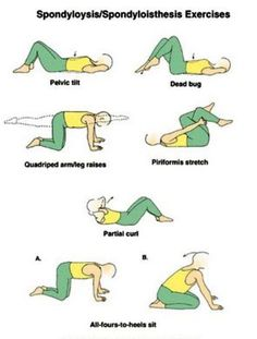 Physical Therapy Exercises for spondylolisthesis Physical Therapy Exercises, Physical Therapist, Physical Exercise, Spondylolisthesis, Back Exercises, Stretches, Athletic Training, Sciatica, Occupational Therapy