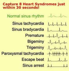 Heart syndromes. Check out Nurses Rock! on Facebook for more!  www.facebook.com/1nursesrock