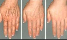 Get Rid Of The Wrinkles On Your Face And Hands Easily With Only One Application Of This One Of A Kind Solution!