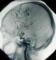 the human brain angiography
