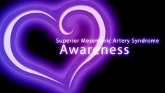 Watch Superior Mesenteric Artery Syndrome (SMAS) Awareness by Joltgnat on Dailymotion here Superior Mesenteric Artery Syndrome, Pelvic Congestion Syndrome, Invisible Illness, Chronic Illness, Journey, Neon Signs, Ibs, Watch, Clock