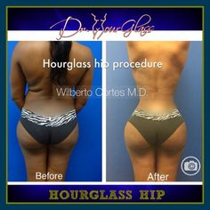 Hourglass Hip, by:  Dr. Wilberto Cortes #drhourglass #drcortes