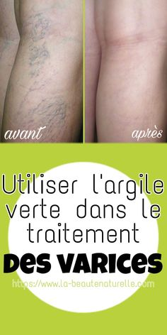 Use green clay in the treatment of varicose veins Green Clay, Batch Cooking, Varicose Veins, Full Body, The Cure, Beauty Hacks, Muscle, Health, Sang