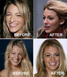 Plastic surgery chronicles: Has Blake Lively had a nose job? There's A LOT of plastic surgery going on in Hollywood these days, and whil. Nose Plastic Surgery, Plastic Surgery Photos, Celebrity Plastic Surgery, Nose Surgery, Rhinoplasty Surgery, Acne On Nose, Blackheads On Nose, Blake Lively Nose, People