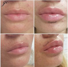 aesthetic aesthetic surgery job job before and after remodelling Face Fillers, Botox Fillers, Natural Lip Plumper, Natural Lips, Lip Injections Juvederm, Lip Plumping Balm, Botox Brow Lift, Heart Shaped Lips, Lip Augmentation