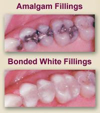 Although some practices still use silver-mercury amalgam fillings, we do not. They have been the standard type of filling for a number of years, but provide only a reasonable restoration. As metal does not bond well to tooth structure, eventually the fillings loosen and allow decay to set in. The main objection patients have about amalgam fillings is the appearance of a dark patch in a light-colored tooth. This can be very noticeable and detracts from a pleasing smile.