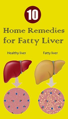 Top 10 Home Remedies for Fatty Liver