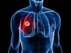 Cancer is the disease in which cell grows abnormally and may cause a tumor. In lung cancer, the cells of lungs starts to grow in uncontrolled manner later form a tumor and can be spread into other body parts. Signs Of Lung Cancer, Lung Cancer Symptoms, Cancer Facts, Lung Cancer Treatment, Cancer Fighting Foods, Types Of Cancers, Multiple Sclerosis, Solution, Natural Treatments