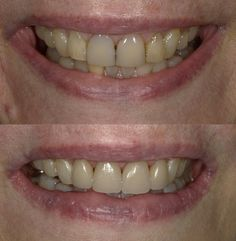 Your Smile, Make You Smile, Beautiful Teeth, Porcelain Veneers, Smile Makeover, Cosmetic Dentistry, All Smiles, Dental, Bright