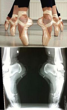 This shows you have to be strong to be a dancer! :)