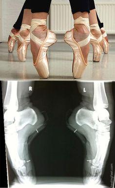 La radiografía muestra los tobillos son fuerte.                                                                                                                                                     Más
