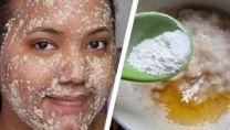Elimine marcas e manchas de melasma - esta máscara elimina tudo em pouco tempo!