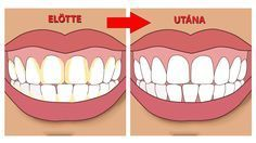 A fogkő más néven elmeszesedett plakk. A plakk összetevői: ételmaradék,baktériumok,nyál. A plakkra kicsapódott nyálsók,ásványi anyagok elindítanak egy meszesedési folyamatot, amelyek összességéből kialakul a fogkő.Tehát az általunk le nem tisztított ételmaradékok elmeszesedése a fogkő.  A fogkő eltávolításának legegyszerűbb módja ha meglátogatjuk a fogorvosunkat és nem kevés anyagi juttatás fejében percek alatt elvégeztetjük ezt a műveletet. Most megmutatjuk, hogy tudod ennek az összegnek a…