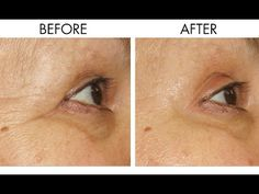 How to Reduce Fine Lines and Wrinkles | Anti Aging Beauty Tip