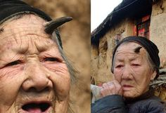 Today's daily WTF 101 year old Chinese woman grows horn on head mysterious condition baffles everyone!