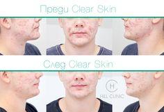 Изключителни успехи при лечението на активно акне с новата система Clear Skin в Хил клиник Aesthetic Dermatology, Anti Aging Facial, Stretch Marks, Cellulite, How To Remove