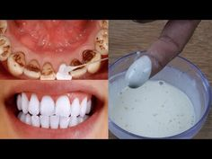 Face Hair, Teeth Whitening, Beauty Skin, Helpful Hints, Health Fitness, Skin Care, Make It Yourself, Food, Youtube