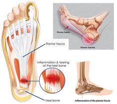 100+ Custom Made Orthotics ideas | orthotics, plantar fasciitis, feet