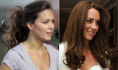 Famosas Sem Maquiagem: Kate Middleton, Adele, Emma Stone e muito mais…