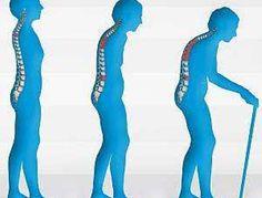 Остеопороз: симптомы, причины, статистика