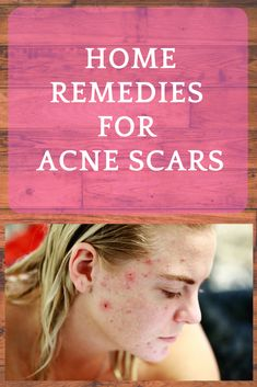 Health & Beauty Tips: 4 Best Home Remedies for Acne Scars - Smeh Beautyt. Beauty Tips For Face, Health And Beauty Tips, Beauty Hacks, Beauty Care, Beauty Ideas, Health Tips, How To Treat Pimples, How To Treat Acne, Cystic Acne Remedies