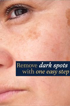 Brown Spots On Skin, Lighten Dark Spots, Dark Spots On Face, Skin Spots, Anti Aging Skin Care, Natural Skin Care, Make Up Gesicht, How To Fade, Best Skin Care Regimen