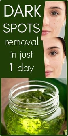 I Got Shocked With The Results Of This Magical Remedy, It Removed Dark Spot In 1 Day - Healthy Food