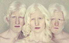 Ensaio premiado de Gustavo Lacerda com albinos é lançado em livro. Foto: Gustavo Lacerda