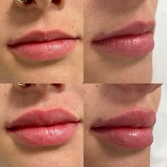 Bereits mit 1ml Hyaluronsäure (Teoxane Kiss) kann eine sehr effektive und schöne Vergrößerung erzielt werden! Lip Fillers, Lips, Nice Asses