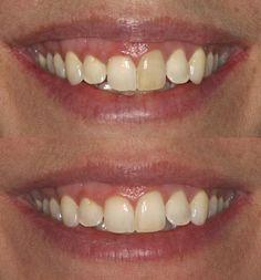 #dentistservicesjalandhar #dentalcareindia #bestdentalcareinJalandhar #topdentalclinicsinpunjab #teethwhiteningpunjab #topdentalclinicsinjalandhar #dentaltourismwinnipeg #dentaltreatmentindia  www.drguptasdentalcareindia.com Cont:91-9023444802