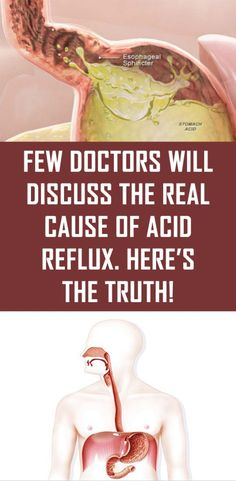 Acid reflux is an extremely common health problem. Other terms used for this condition are gastroesophageal reflux disease (GERD) or peptic ulcer disease. Typically, acid reflux is thought to be caused … Acid Reflux Cure, Acid Reflux Treatment, Acid Reflux Recipes, Acid Reflux Remedies, Cause Of Acid Reflux, What Causes Acid Reflux, Peptic Ulcer, Amigurumi