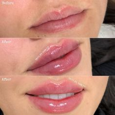 lip injections before and after fillers kiss natural shape women lipstick Cheek Fillers, Dermal Fillers, Botox Fillers, Botox Lips, Aesthetic Dermatology, Facial Aesthetics, Lip Augmentation, Eye Makeup, Contouring Makeup